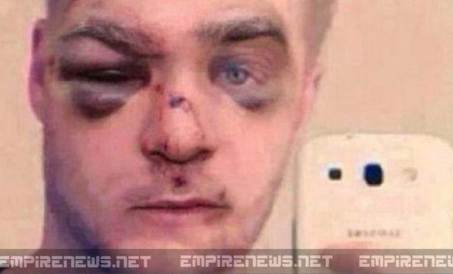 Regardez ce qui est arrivé à l`homme qui a battu son chien. Qu`en penses-tu?