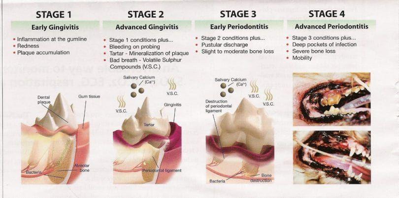 Les étapes de la maladie parodontale
